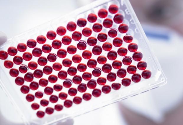 анализ на выявление паразитов в организме человека