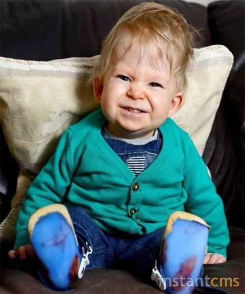 ребенок без мозга фото